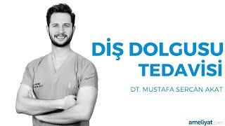 Diş Dolgusu Tedavisi (Dt. Mustafa Sercan Akat)