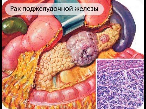 Поджелудочная железа: симптомы заболеваний