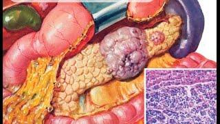 Как выбрать правильное лечение при раке поджелудочной железы?