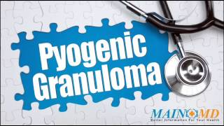 Pyogenic Granuloma ¦ Treatment and Symptoms