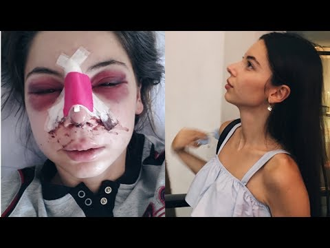 BURUN ESTETİĞİ HAKKINDA | Burun Ameliyatı Fotoğraflarıma Bakıyorum!