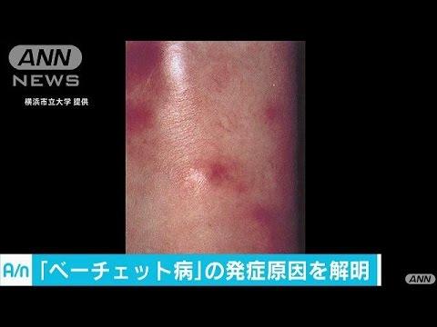 目など体のあらゆる部分に炎症を引き起こす難病について、横浜市立大学などの研究チームが詳しい発症のメカニズムを解明しました。 「ベー...