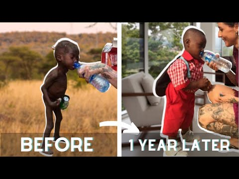 Hope ●  The starving African boys transformation who has been saved by an aid worker