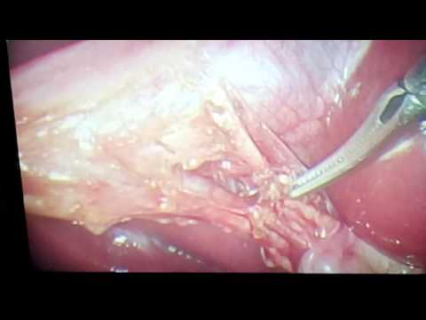 Laparoscopic Cholecystectomy - Critical View Of Safety - Rouviere's Sulcus: Tips and Tricks.