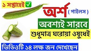 অর্শ রোগের ঘরোয়া চিকিৎসা | How to cure piles bangla | Piles treatment at home bangla