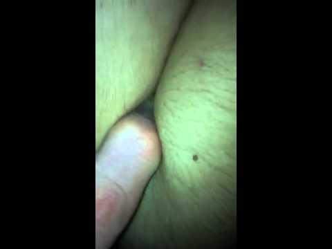 Xxx porn finger pull in ass thumbnail