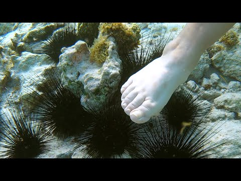 Stung By Sea Urchin. What's Gonna Happen?!