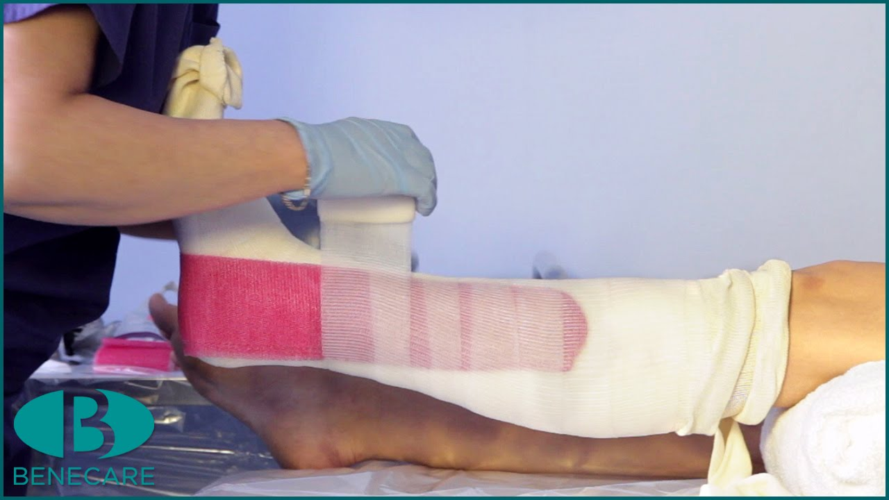 how to apply a below knee combi cast youtube
