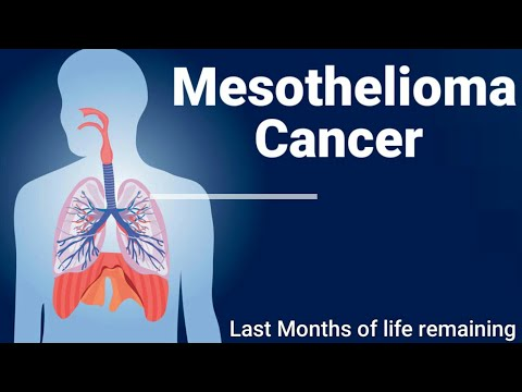 an-introduction-to-mesothelioma.-what-is-mesothelioma.-how-to-treat-mesothelioma.-mesothelioma.