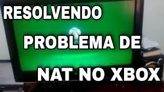 XBOX ONE - Rede ESTRITA? Nat Duplo Detectado? TENTE ISTO!!!