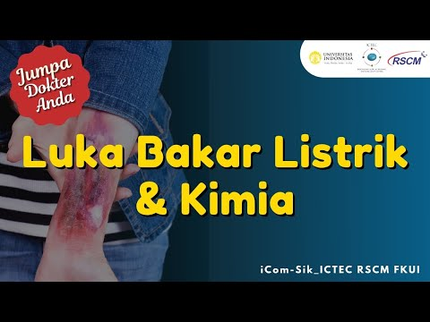 Jumpa Dokter Anda : Luka Bakar Listrik & Kimia