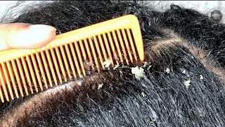 Lots of FLAKES! Satisfying Scalp scratching and picking ASMR Dandruff flakes REMOVAL