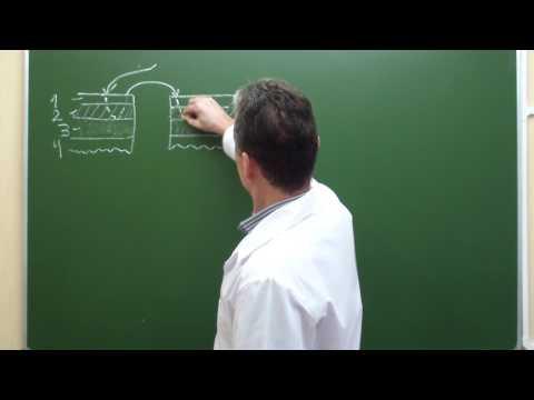 Схема кишечного шва Ламбера
