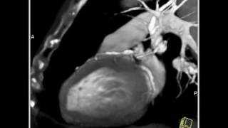 Vascular: Ascending Aortic Aneurysm evaluated with both 3D and 4D reconstructions(4 of 5)