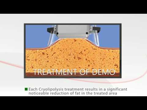 ETG15-4 Cryolipolysis Removal Fat Machine Functional Demonstration