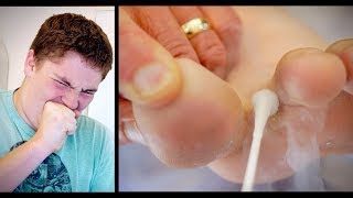 OUCH! FREEZING BIG WARTS BETWEEN TOES (with liquid nitrogen) | Dr. Paul
