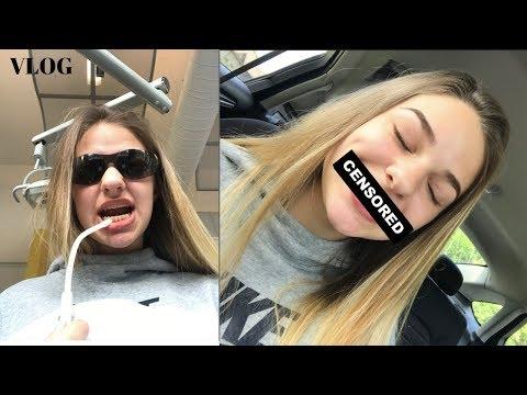 finally getting my braces off!! - vlog