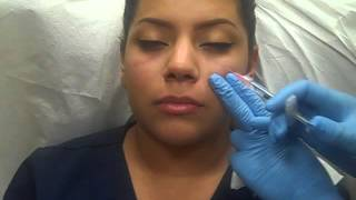 Injection of Restylane to Tear Trough