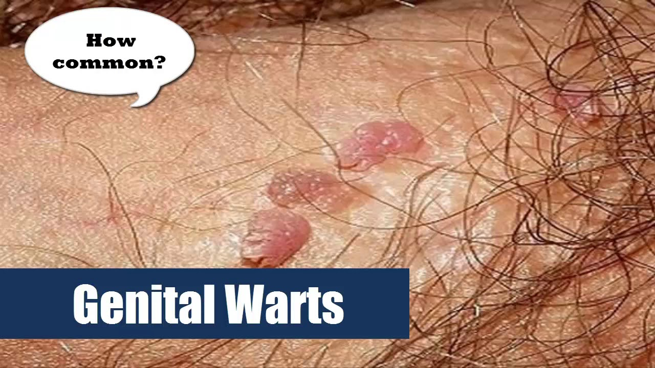 hpv warts how common