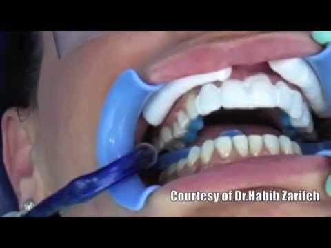 Lumineers Hollywood smile veneers cosmetic dentistry step by