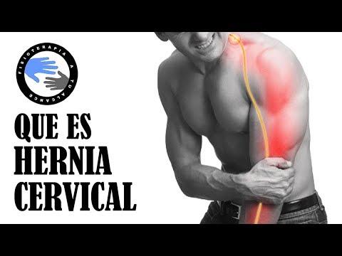 Hernia de disco cervical o hernia discal cervical, que es y porque se produce