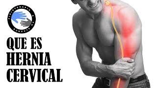 Espalda el de daño síntomas en lesión nervio de de