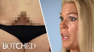 Tummy Tuck Surgeries Gone Wrong | Botched | E!