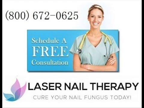 Toenail Fungus Laser Treatment Grand Prairie Dallas Texas