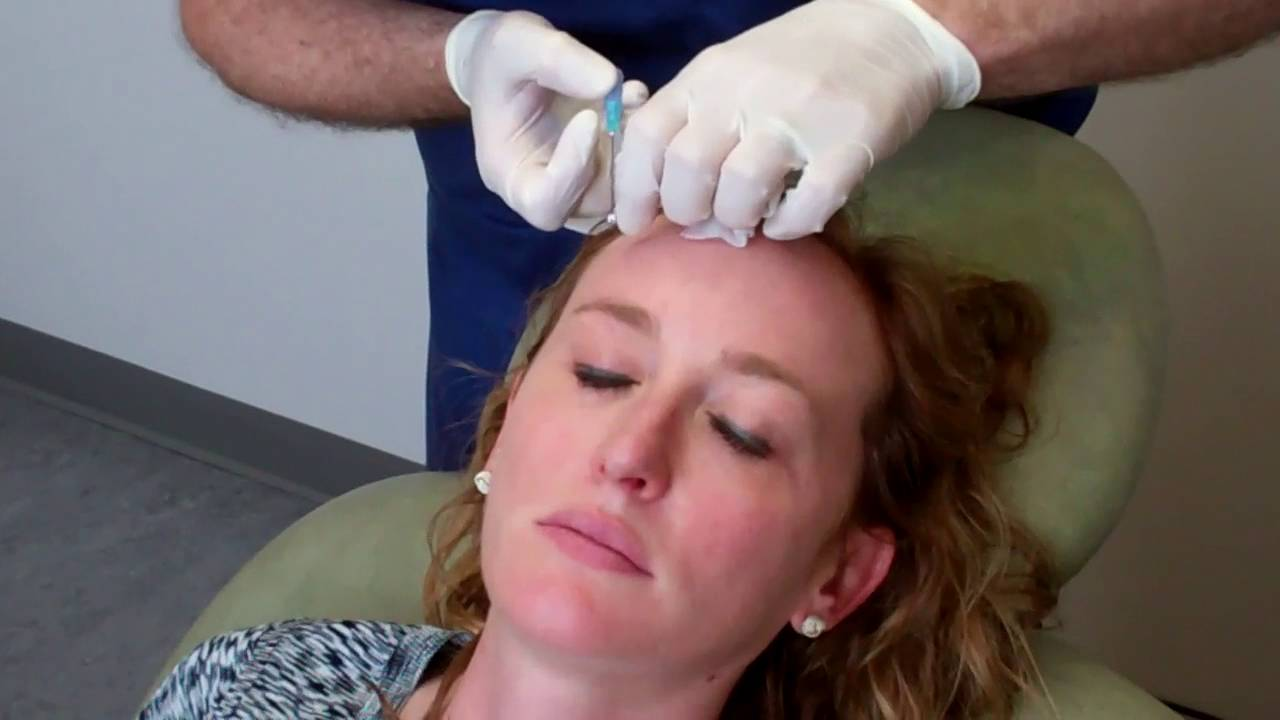 Brow Lift with PDO threads Lawrence Janowski, MD