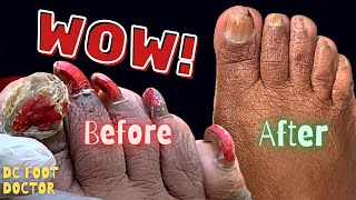 Wow! 18 Months Later:  Before and After Toenail Fungus Treatment Process Through the Pandemic.