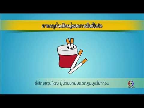ย้อนหลัง Health Me Please | โรคไอเรื้อรัง ตอน 2 | 07-03-60 | TV3 Official