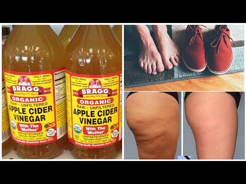 Яблочный уксус творит чудеса! Лечение 4 распространенных заболеваний!