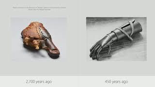 Connected Arms (sponsored by Microsoft) - Joseph Sirosh (Microsoft)