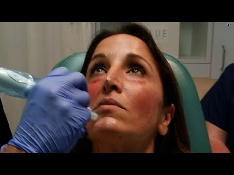 Vampire Facelift® | Official Website | Before & After | Cost