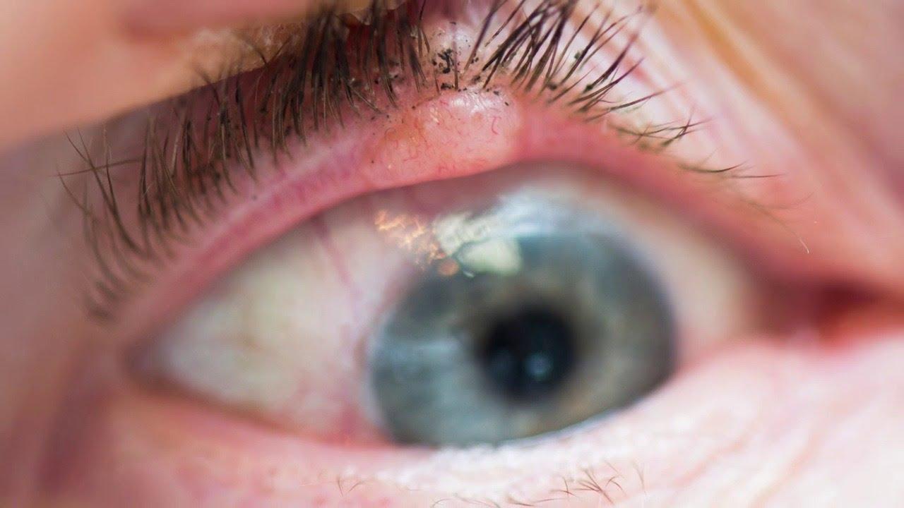 Eyelid Irritation | Eyelid Infections