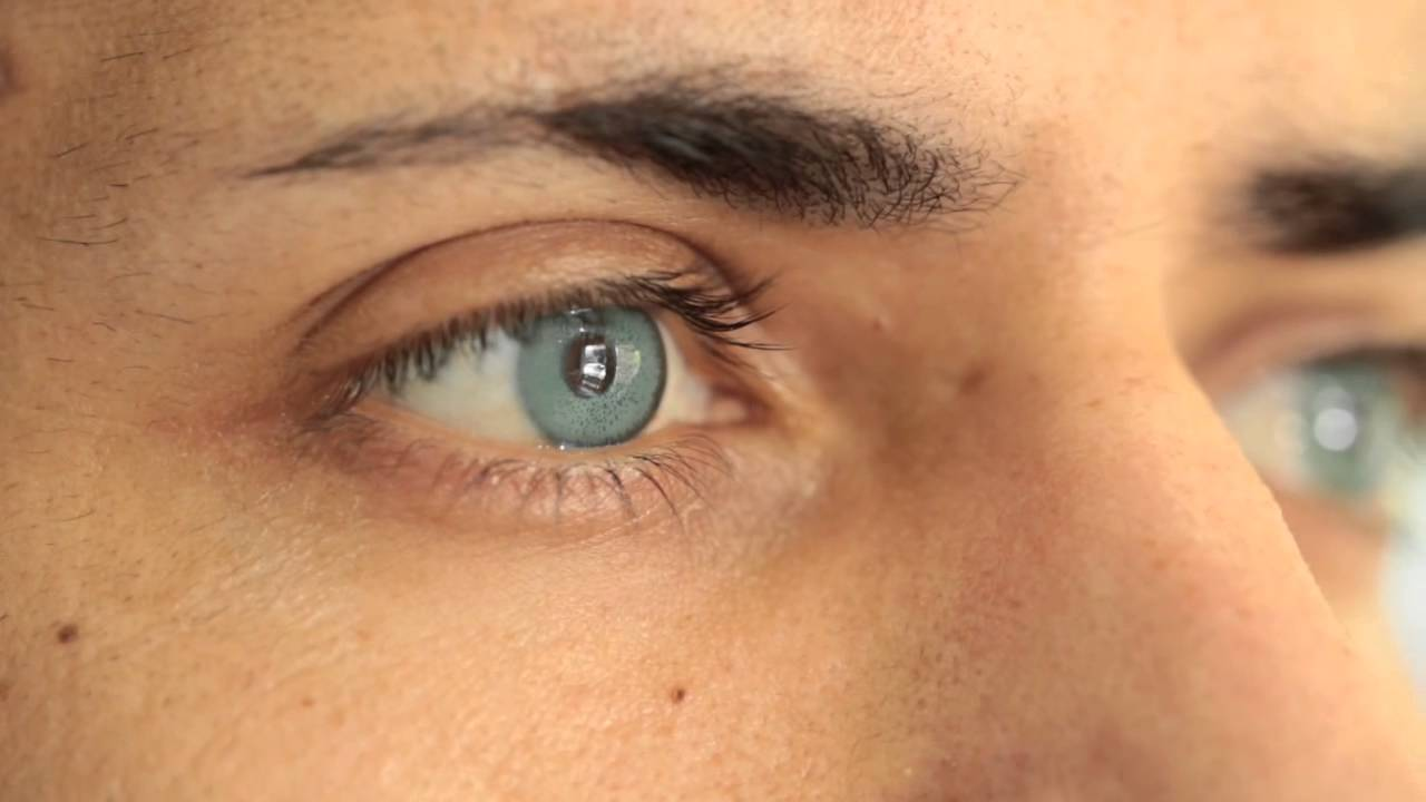 cosmetic surgery to change your eye color forever brightocular youtube - Eye Color Change Surgery Before And After