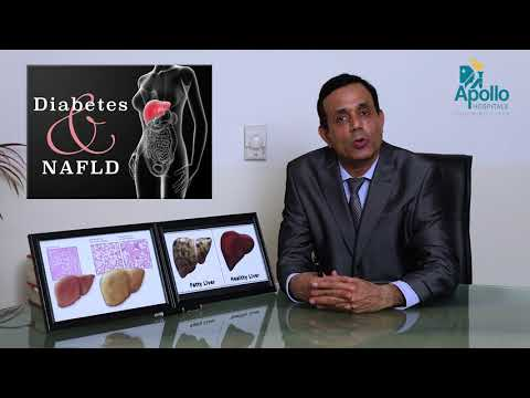 Fatty Liver- Explained In Hindi By Dr. Shravan Bohra, Liver Specialist, Apollo Hospitals Ahmedabad.