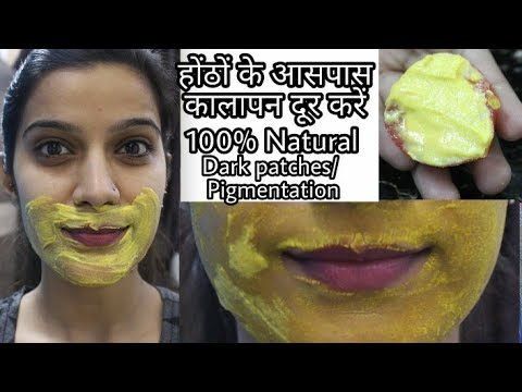 How To Remove Dark Black Patches,Dark Spots, Pigmentation Around Mouth Area | Super Style Tips