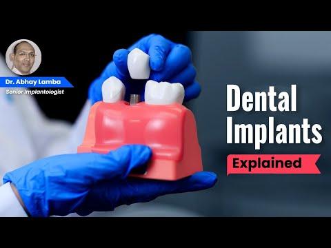 Dental Implants - Dr. Abhay Lamba Dentist, Implantologist, Dental Surgeon