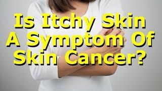 Is Itchy Skin A Symptom Of Skin Cancer?