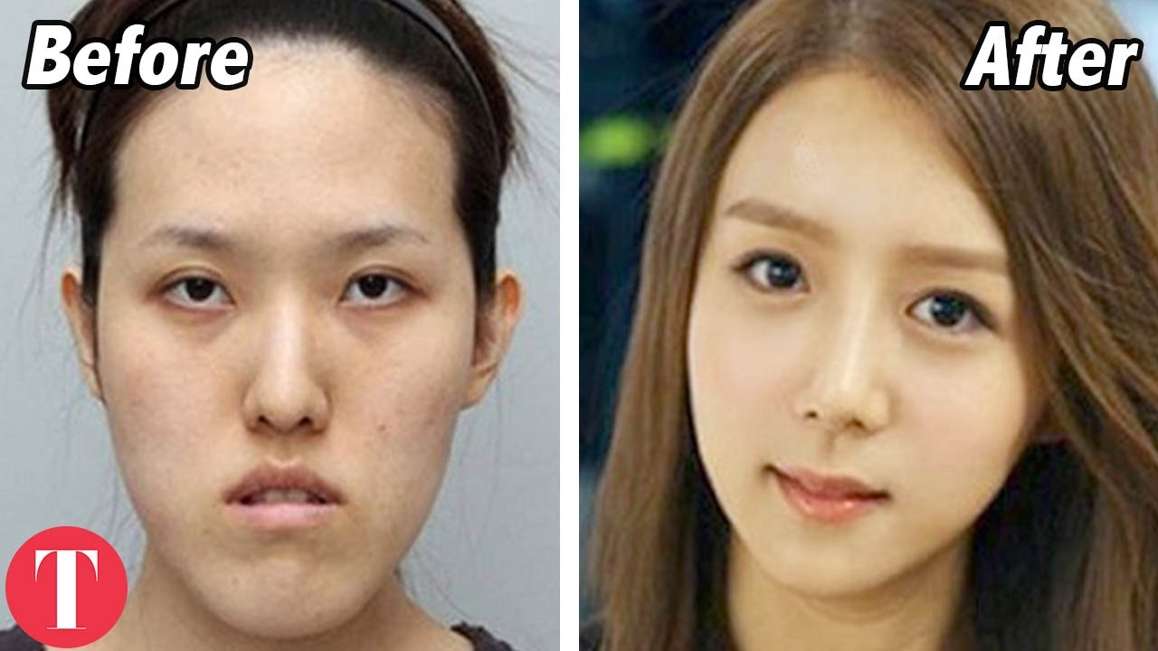 industry facial Beauty
