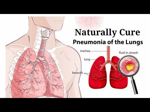 Natural Home Remedies For Treating Pneumonia