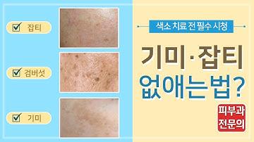 기미, 잡티, 검버섯 제거 치료전 필수 체크- 피부과 전문의