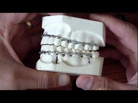Wiring Fractured Jaw - Erich Arch Bars