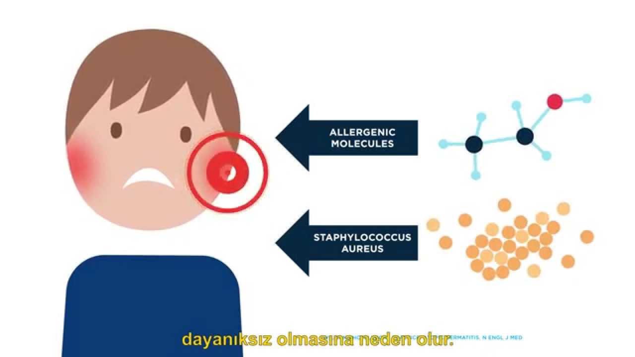 Atopik Dermatit Bitkisel Tedavi-Atopik Egzama İçin Bitkisel Çözümler