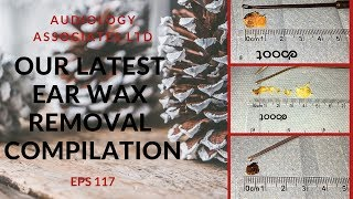 OUR LATEST EAR WAX REMOVAL COMPILATION VIDEO - EP 117