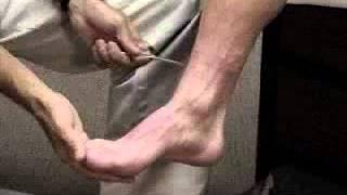 Assessment - Reflex Exam - Achilles Reflex Exam Comparing Normal with Hyperreflexia
