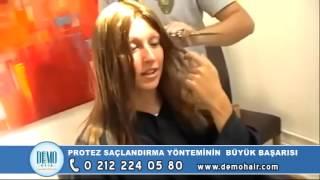 bayan saç protez uygulamasi video istanbul şişli