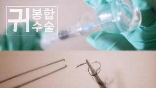 ASMR Ear | Sewing | Stitched up | 귀 상처치료 봉합