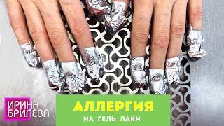 АЛЛЕРГИЯ на гель лаки Химический ОЖОГ НОГТЕЙ Онихолизис Ирина Брилёва